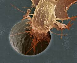 cancer cell spreading to a smoker's lung