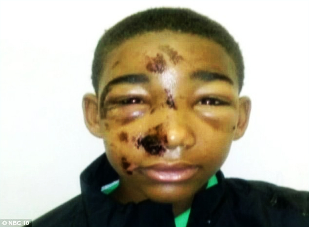 Police Brutality PA:  Police Officers Tasered HANDCUFFED UNARMED Black Teenager in FACE?
